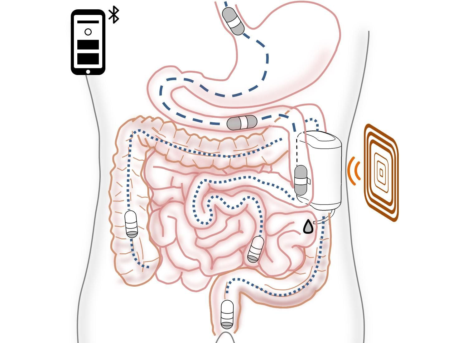 A diagram shows the concept of a robotic insulin delivery system that would be implanted in the gut.