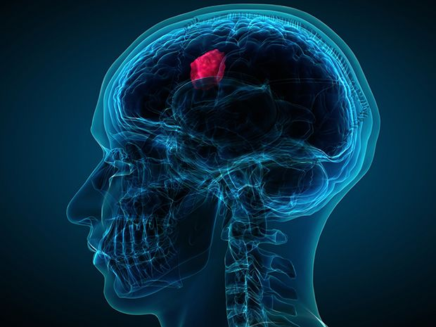 An illustration shows a transparent human head in profile with a brain tumor highlighted in red.
