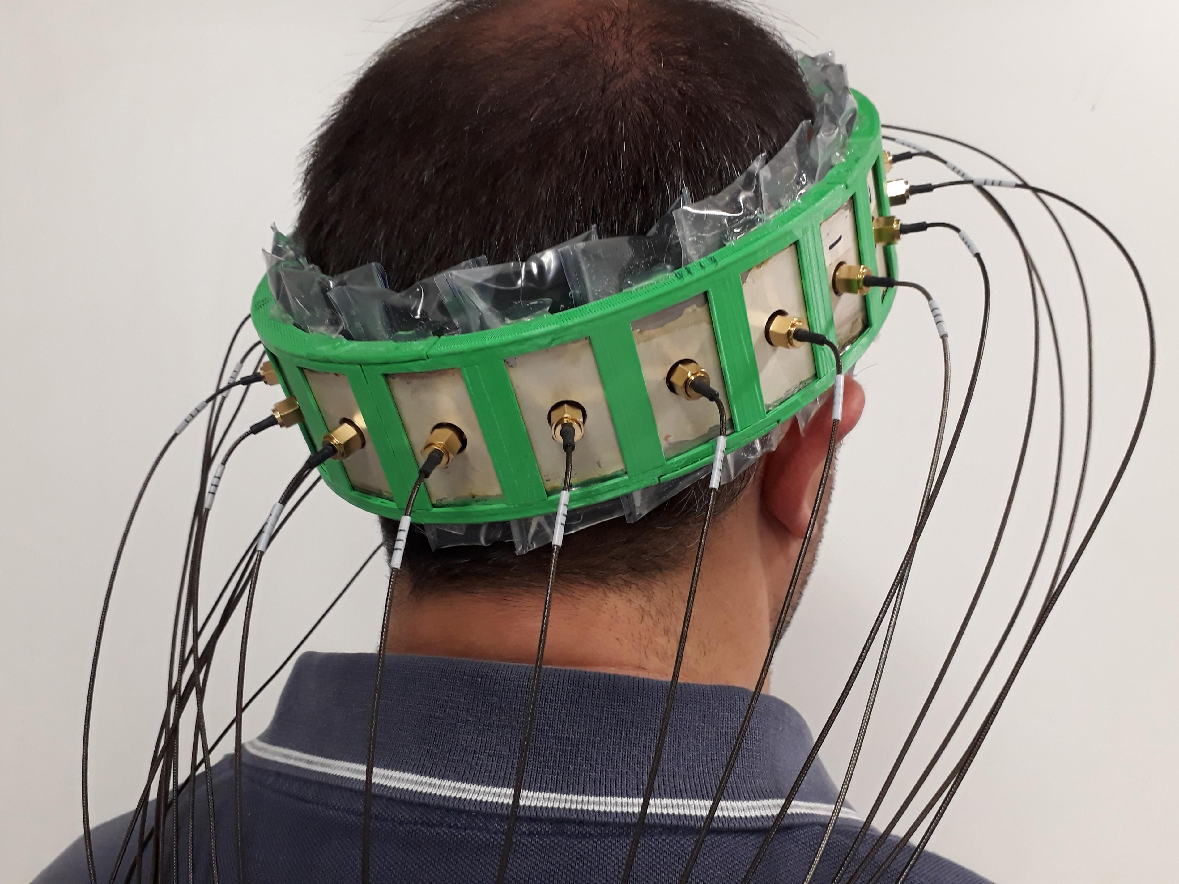 Back view of a man's head. A large green object encircles it, with wires coming out of white rectangular shapes across the surface.