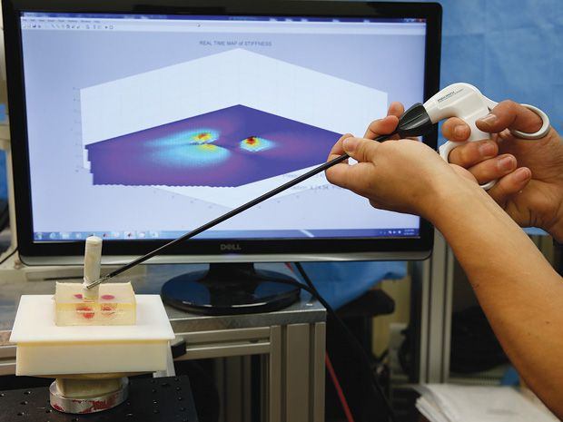 New Probes Replace Surgeons' Sense of Touch