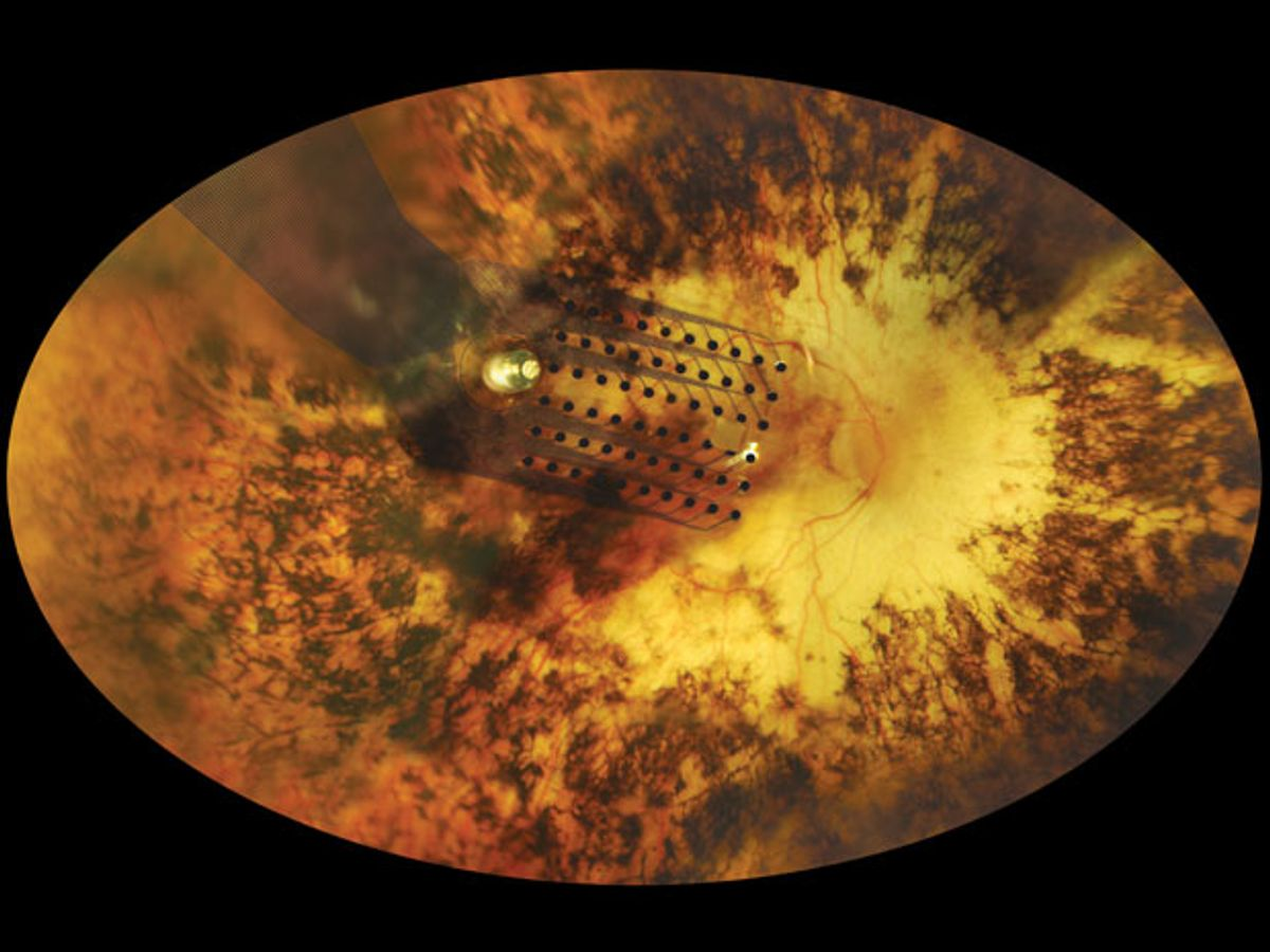 """""""Bionic Eye"""" Implants Will Hit the U.S. Market This Year"""