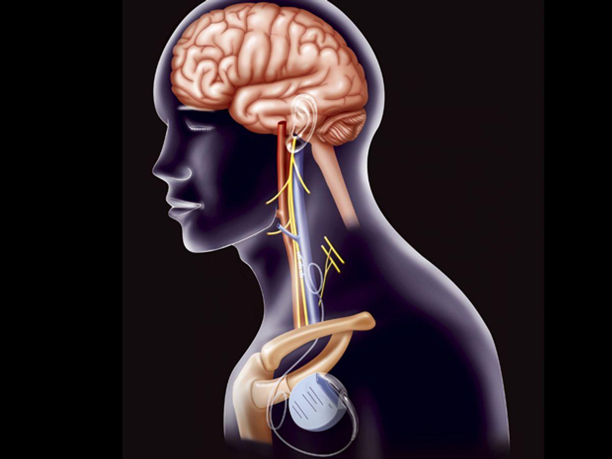 Vagus Nerve Implant Fails to Fix Heart Failure
