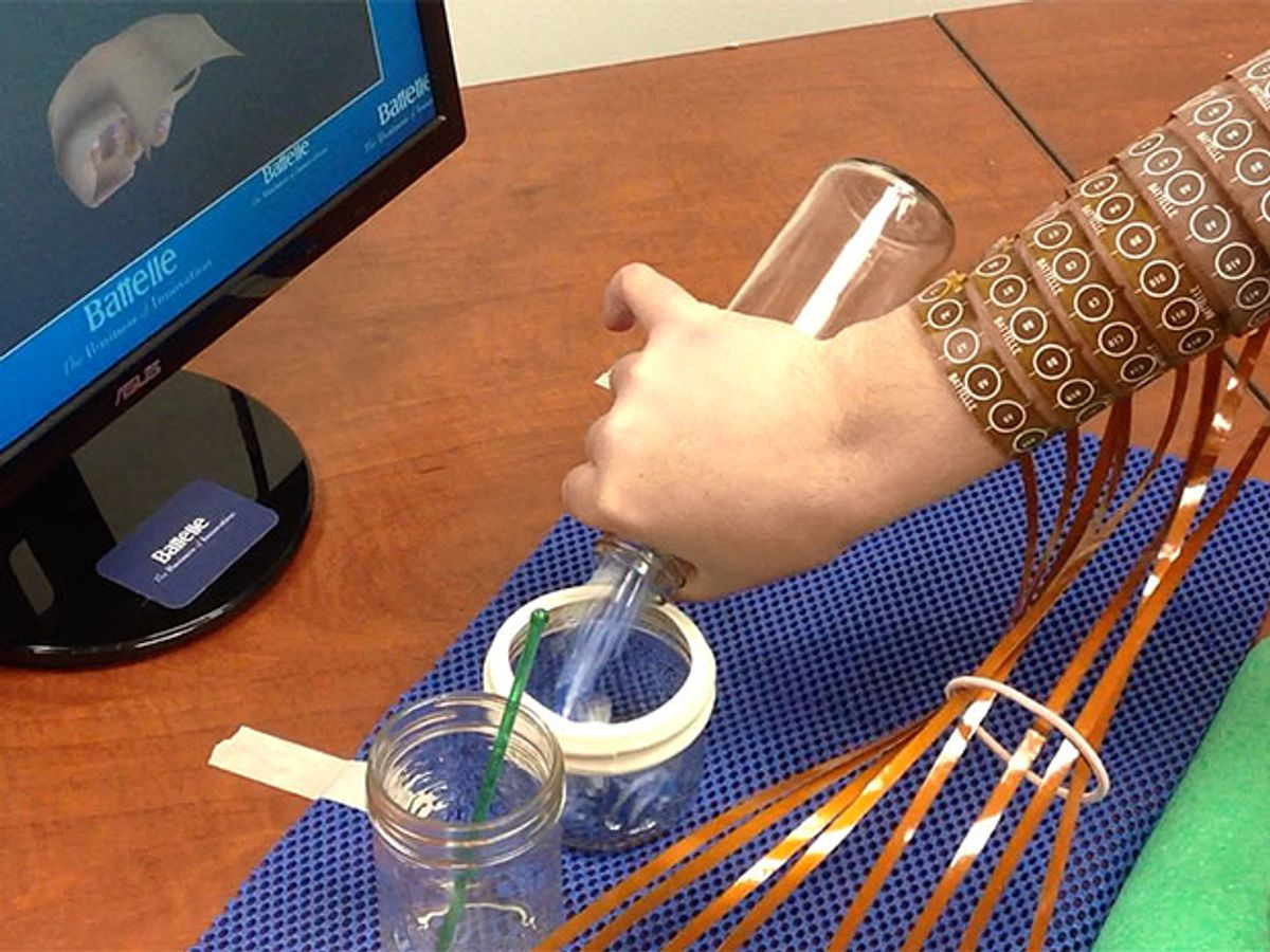 """Now There's a Way Around Paralysis: """"Neural Bypass"""" Links Brain to Hand"""