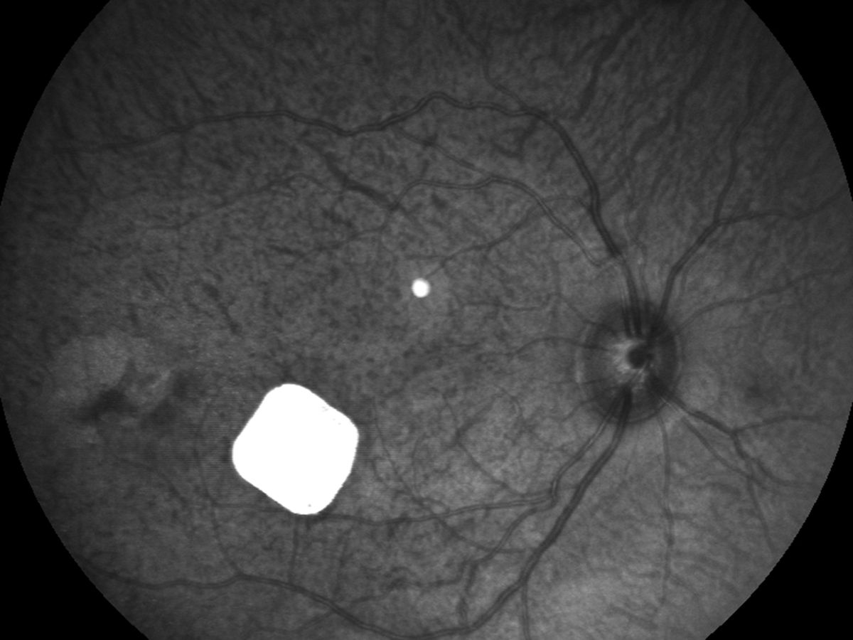 Image showing Pixium Vision's experimental vision chip implanted in a primate's eye.