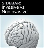 graphic link to invasive vs noninvasive sidebar