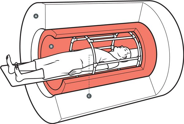 Illustration of scanner using three sets of electromagnetic coils