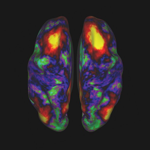 LIGHTBULB MOMENT: This color-coded map, createdby researchers at the Human Connectome Project, illustrates relativelevels of functional connectivity between points in the brain's cerebralcortex.