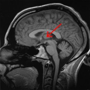 Black and white MRI image of a head in cross-section shows the different regions of the brain, with a red arrow pointing to the thalamus in the middle.