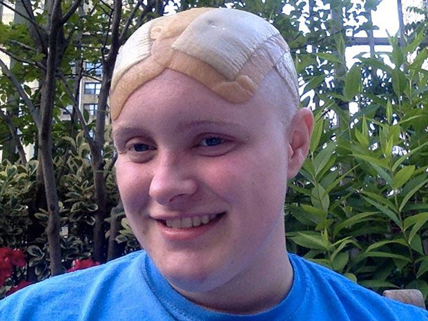 Headshot shows a smiling young woman outside, with a shaved head and bandages on her scalp.