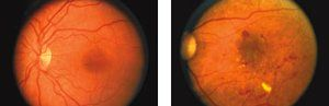 Two images of a human retina, one with healthy blood vessels and the other showing signs of diabetic retinopathy