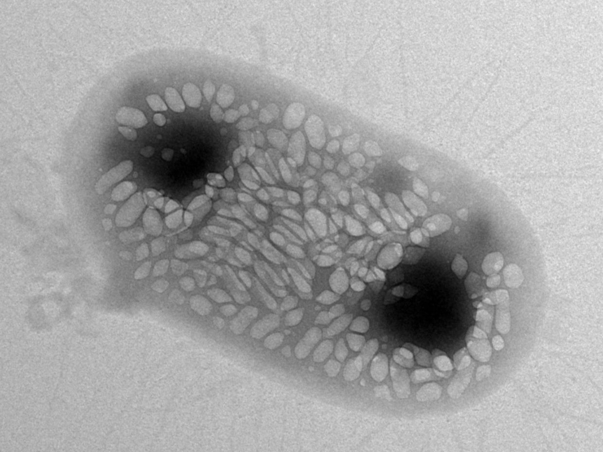 TEM image of a single commensal bacterium, E. coli Nissle 1917, which has been genetically engineered to express gas-filled protein nanostructures known as gas vesicles.