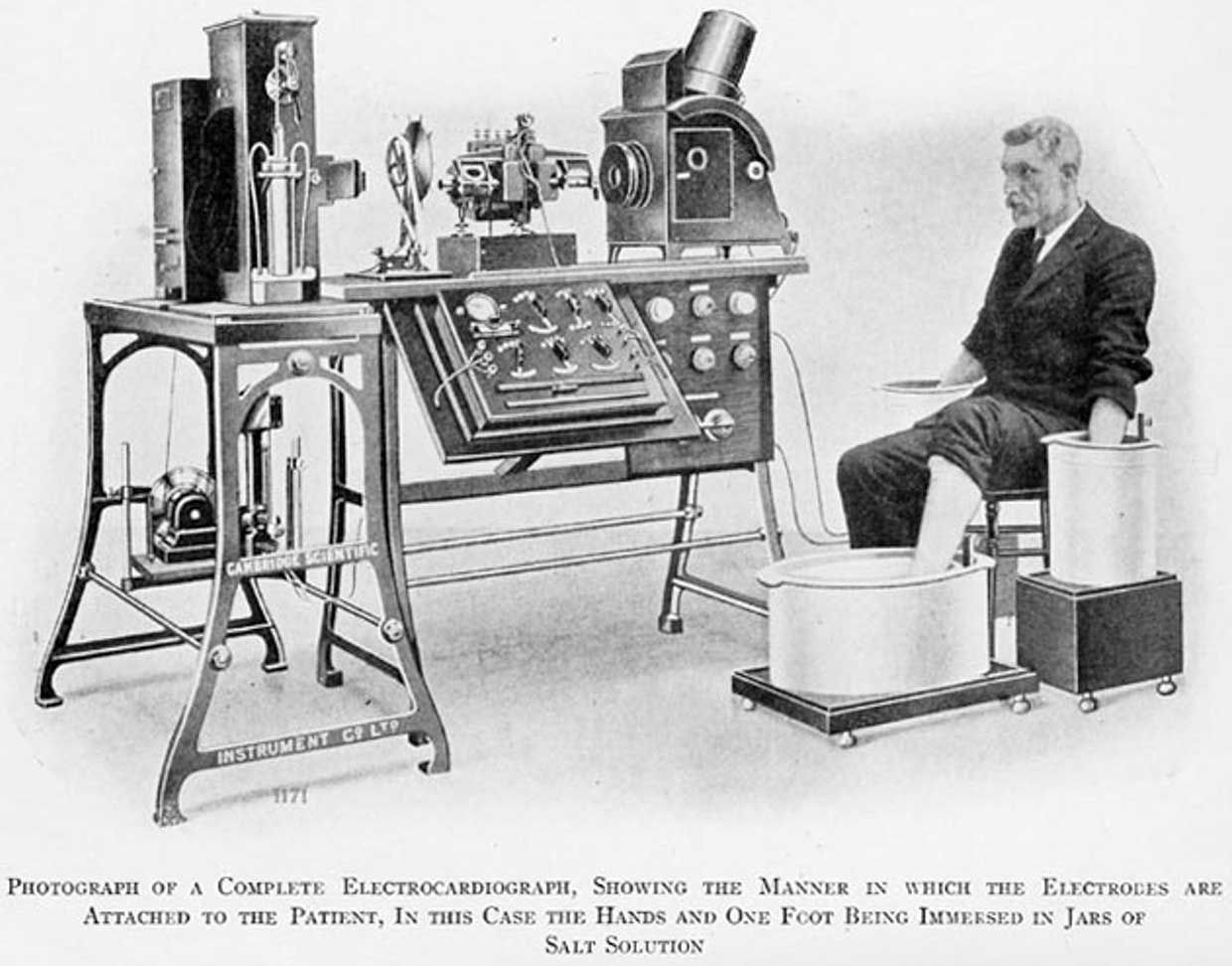 Willem Einthoven's string galvanometer was sensitive enough to measure the tiny but regular voltage fluctuations in a single heartbeat.