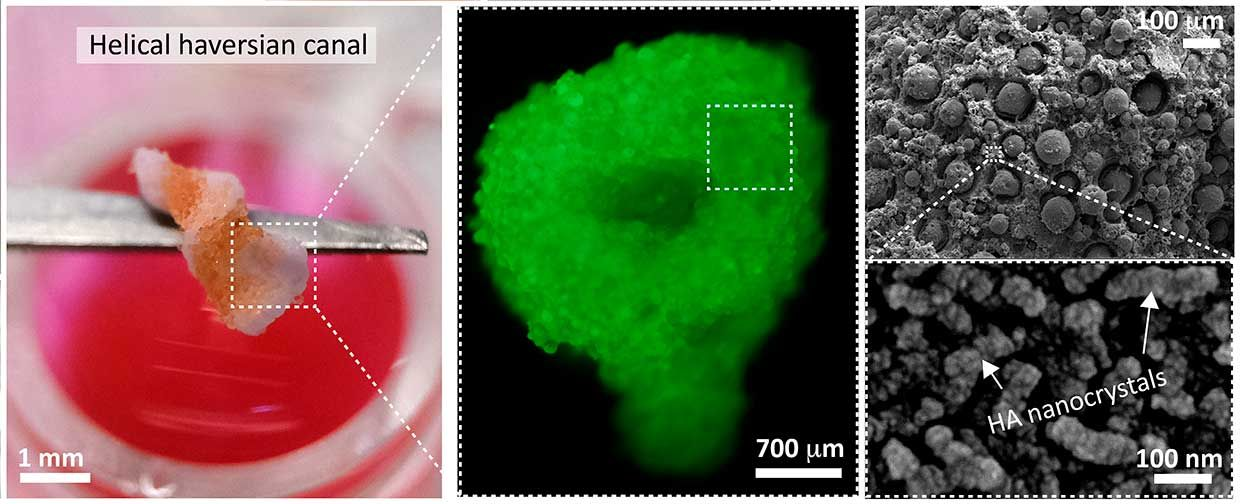 The researchers created a biocompatible calcium phosphate material that forms a paste at room temperature. When put into a gelatin bath or other solution, a chemical reaction occurs and the paste hardens into a porous nanocrystal matrix similar to structure of bone marrow.