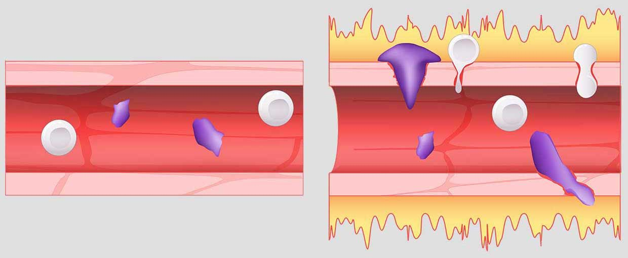 A normal blood vessel, shown at left, is compared with a blood vessel affected by excess bradykinin. A hyperactive bradykinin system permits fluid, shown in yellow, to leak out and allows immune cells, shown in purple, to squeeze their way out of blood vessels.