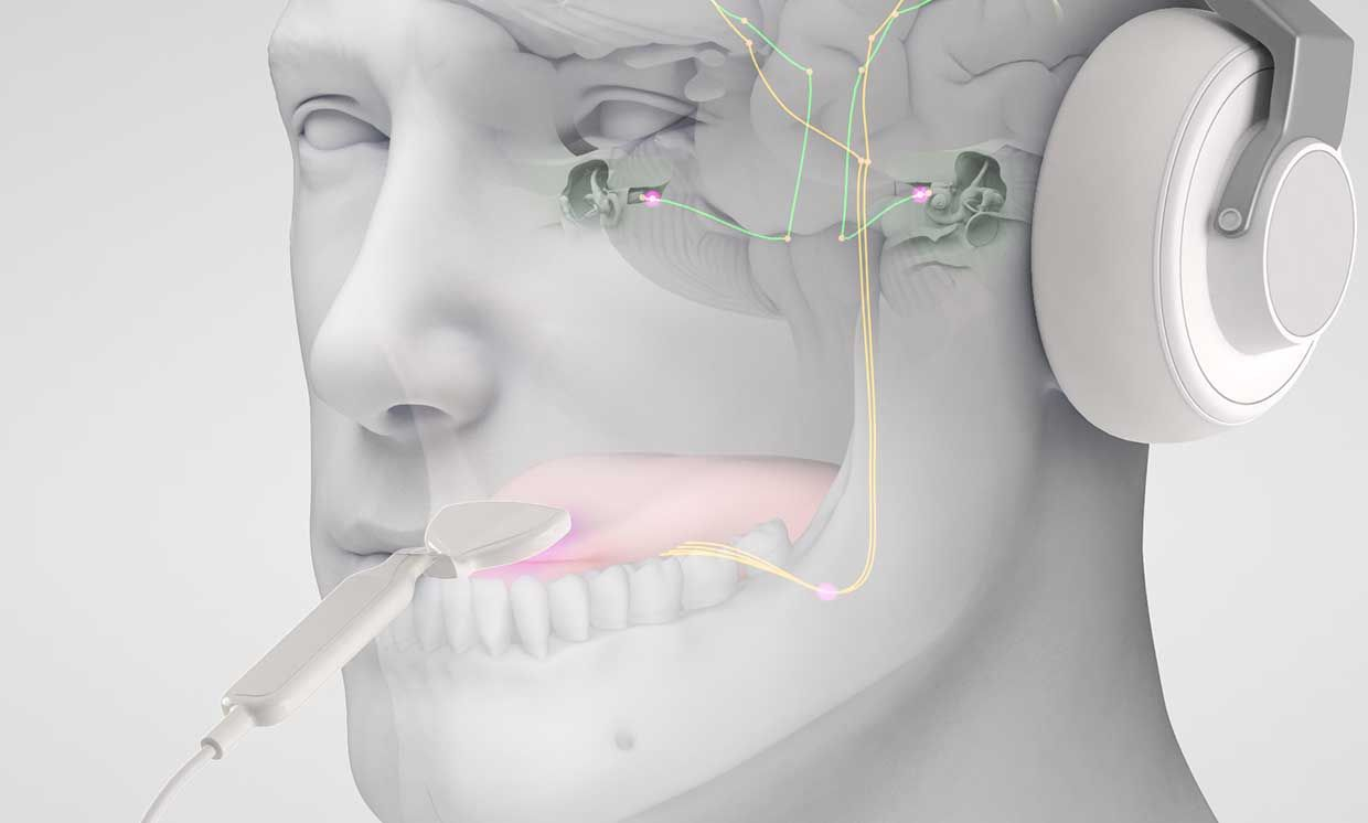 The device pairs sound with gentle electrical tongue stimulation to treat tinnitus.