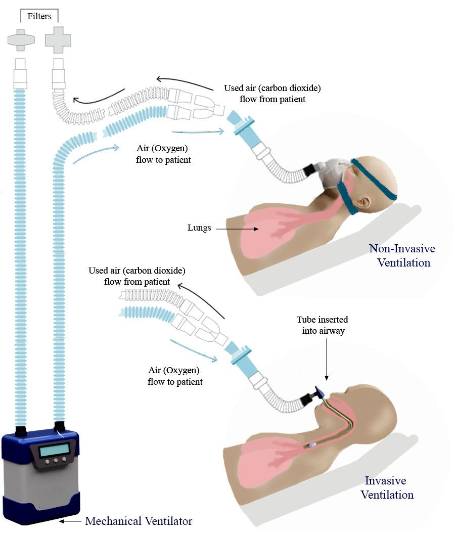 Illustration of non-invasive, and invasive methods of ventilation.
