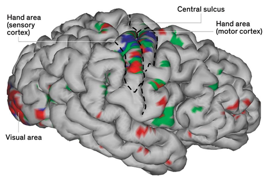 Image of a brain with callouts.