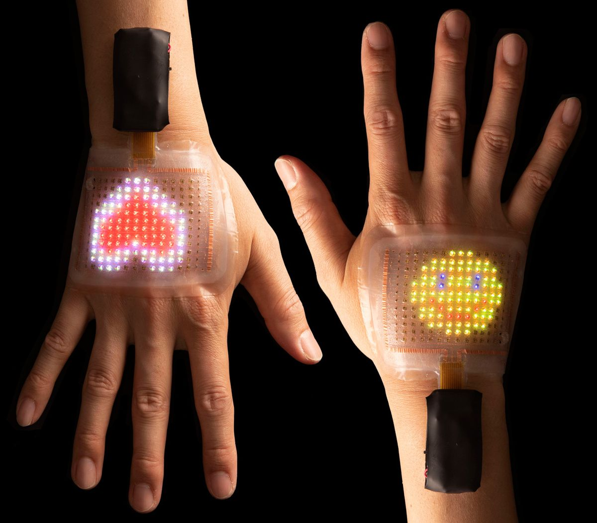 Image of two hands displaying the skin displays.