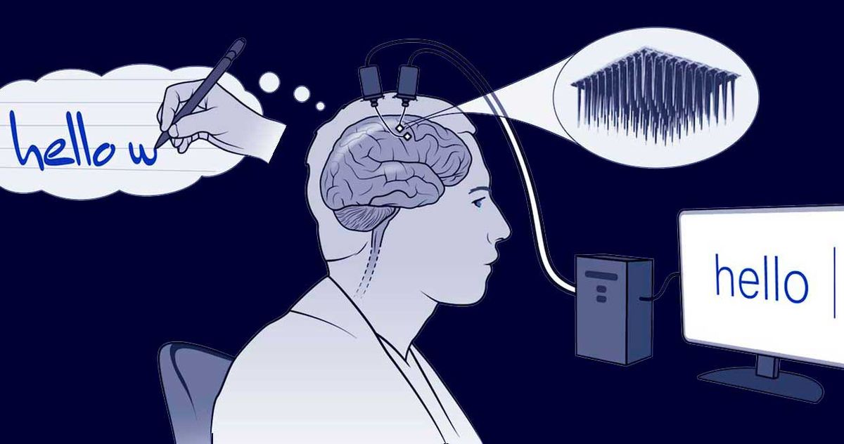 Two tiny arrays of implanted electrodes relayed information from the brain area that controls the hands and arms to an algorithm, which translated it into letters that appeared on a screen. The screen says hello.