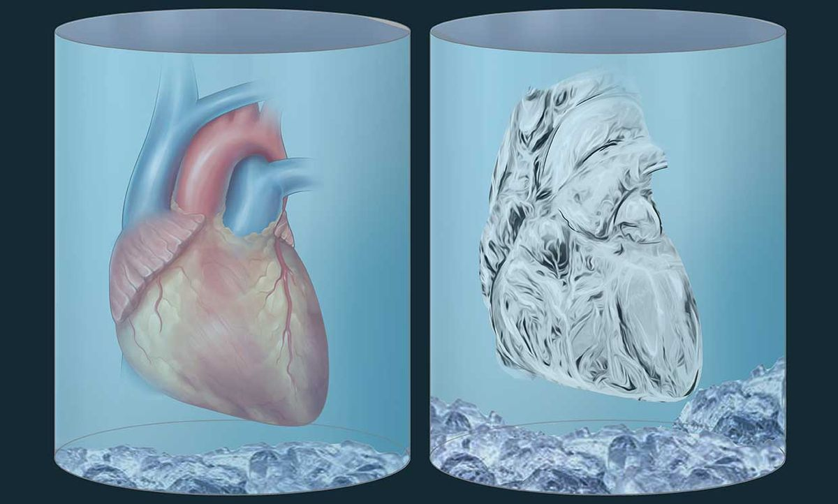 Illustration of two hearts, one prepared for neonatal organ cryopreservation