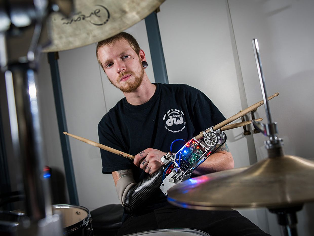 Drummer With Cyborg Arm Wants to Take It On Tour