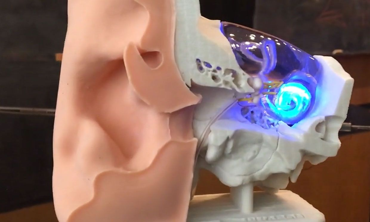 The optogenetic cochlear implant translates sound into optical stimulation patterns via LEDs placed within the cochlea.