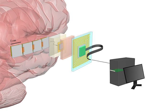Diagram shows a brain with implanted chips that send a wireless signal to an electronic patch on the scalp, which is wired to a computer.