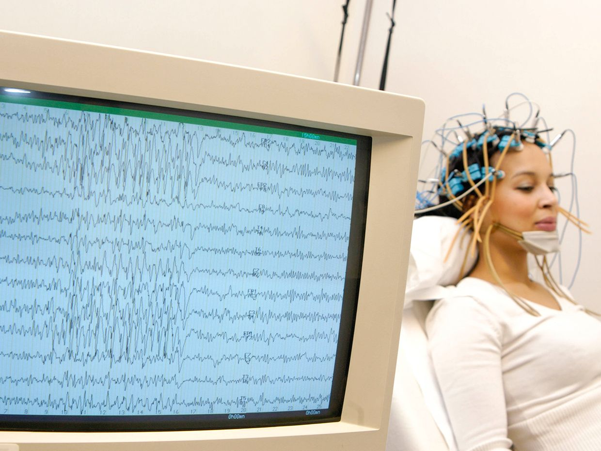 Electroencephalogram (EEG) on a 27-year old woman. Epilepsy tracing on the screen.