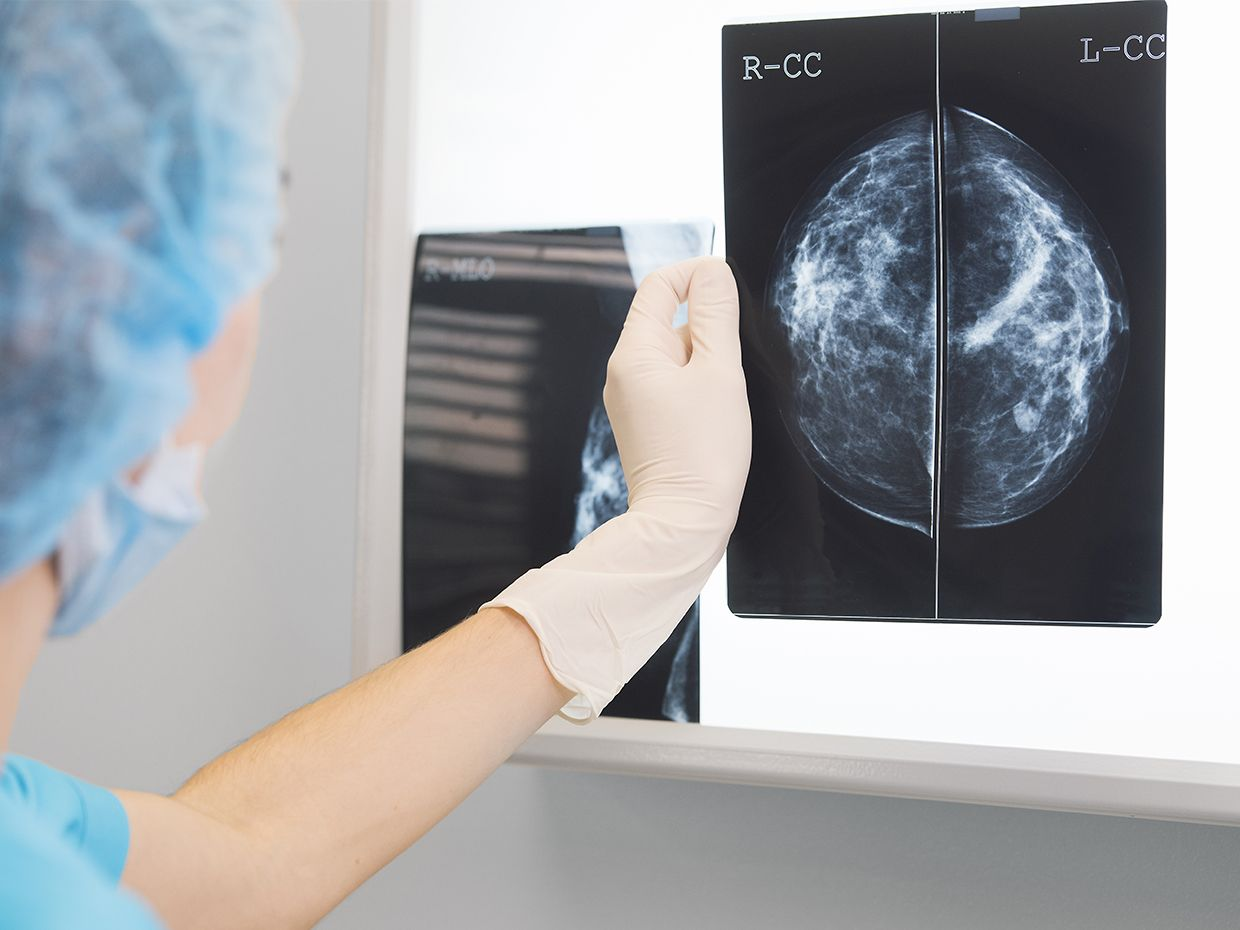 Woman doctor or nurse in surgery outfit is holding a mammogram in front of x-ray illuminator
