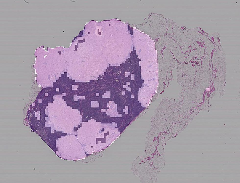 Image of a tumor.