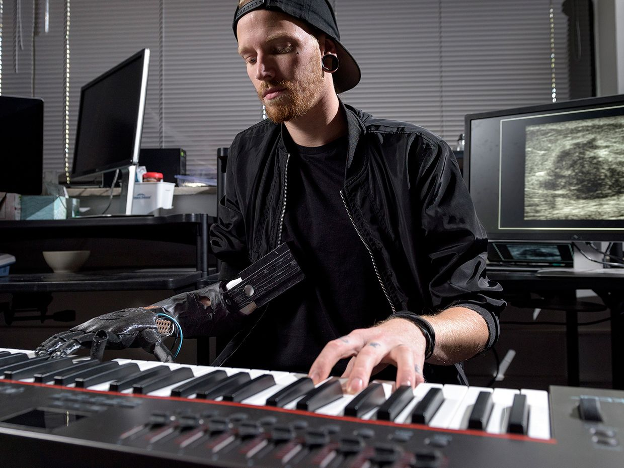 Jason Barnes lost part of his right arm in 2012. He can now play the piano by controlling each of his prosthetic fingers.