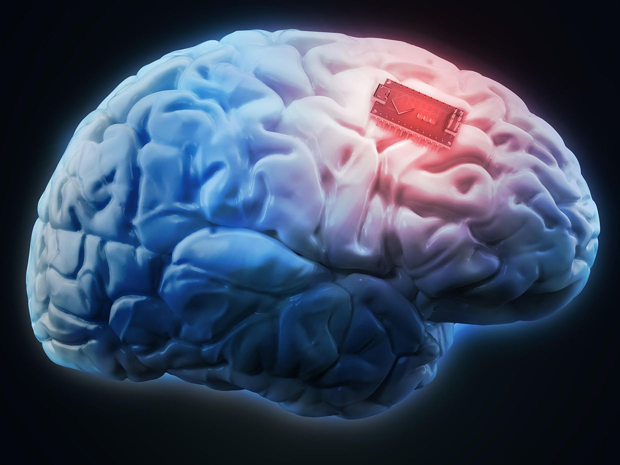 An illustration shows a human brain with a glowing chip on its surface.