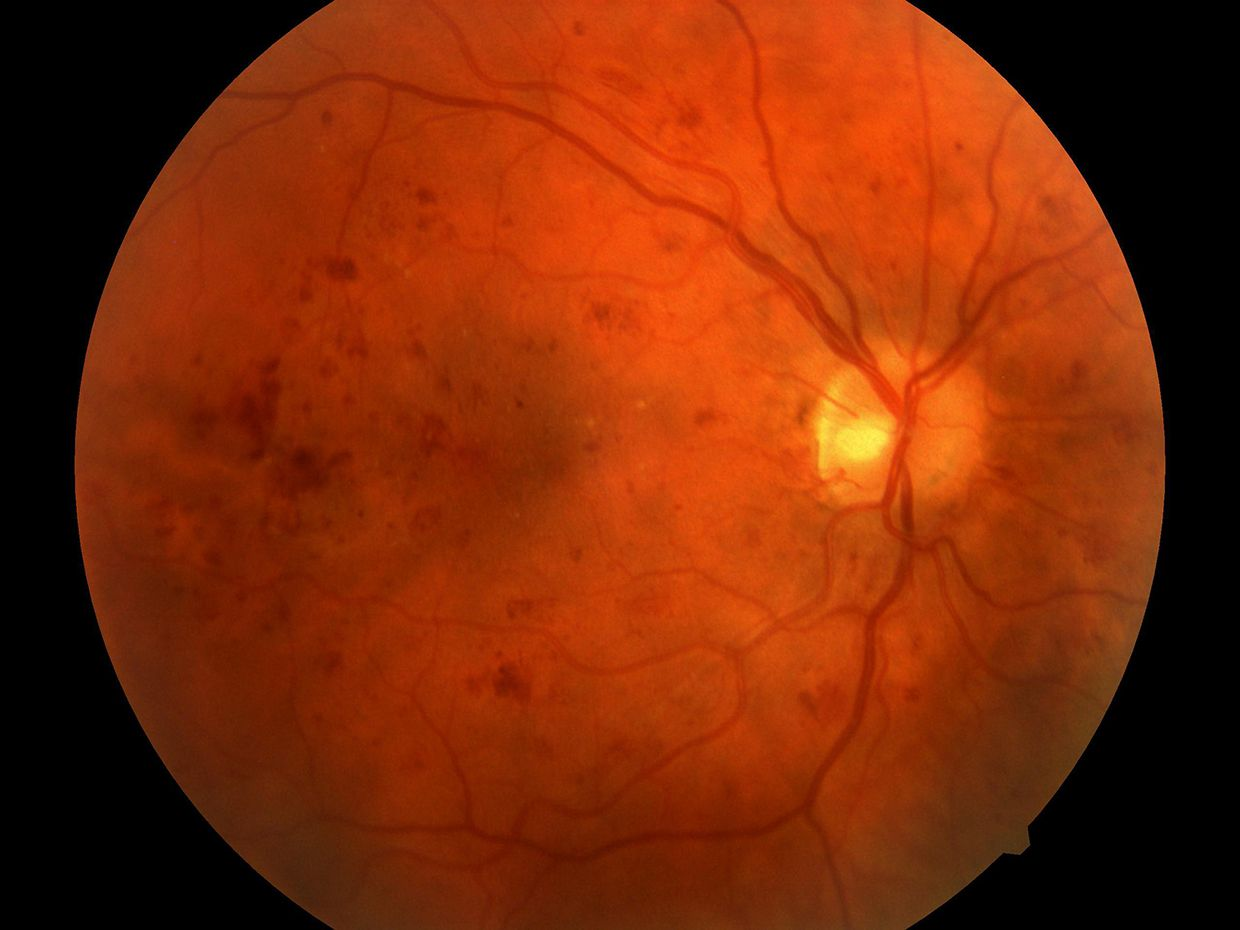Retinal image showing severe diabetic retinopathy captured by the fundus camera.