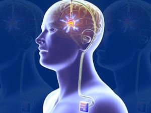 Illustration shows a man's transparent torso with a battery implanted in his shoulder and wires leading to a chip implanted in his brain.