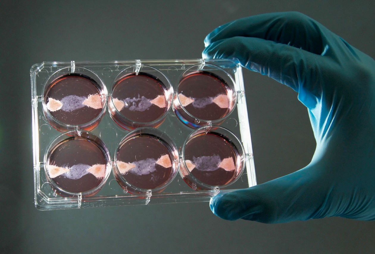 A researcher at the University of Maastricht in the Netherlands shows off strips of animal flesh grown in petri dishes. He hopes to produce an in vitro hamburger patty by next fall. The cultured meat begins as stem cells taken from real animals and is fed a mixture containing just the right amount of fat, protein, and carbs.
