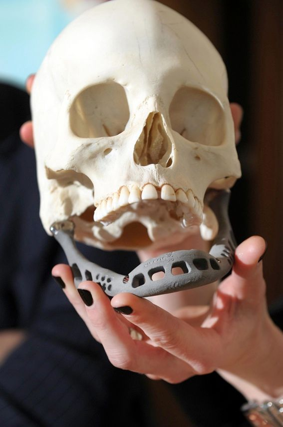 A researcher at Maastricht University in the Netherlands shows off an artificial jaw that was subsequently implanted in a woman who had lost hers to a serious infection. The titanium bone replacement, which was made by a 3-D printer, allowed the woman to speak and eat within hours of the surgery.
