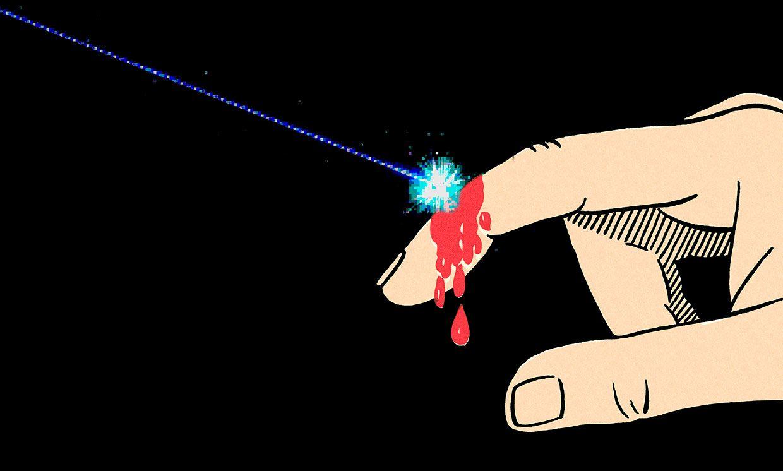 Illustration of a laser healing a cut on a finger