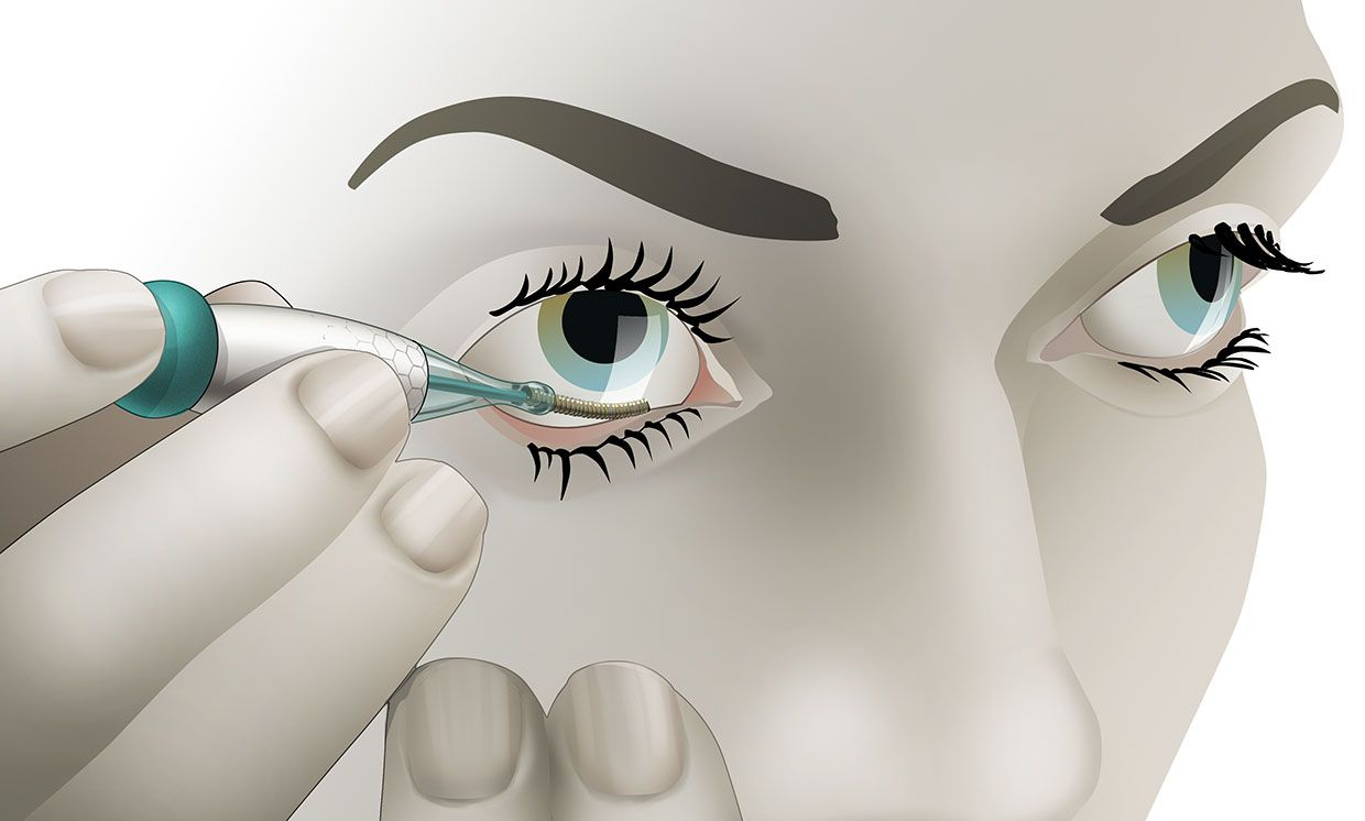 Illustration of a patient inserting the Noviosense tear glucose sensor behind the lower eyelid.