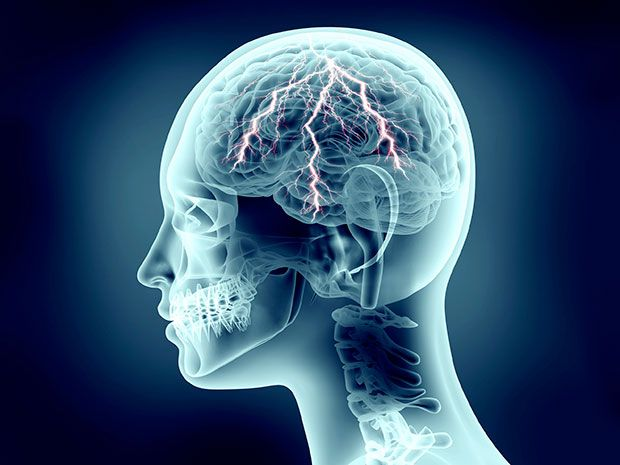 Illustration shows a brain being stimulated with electricity.