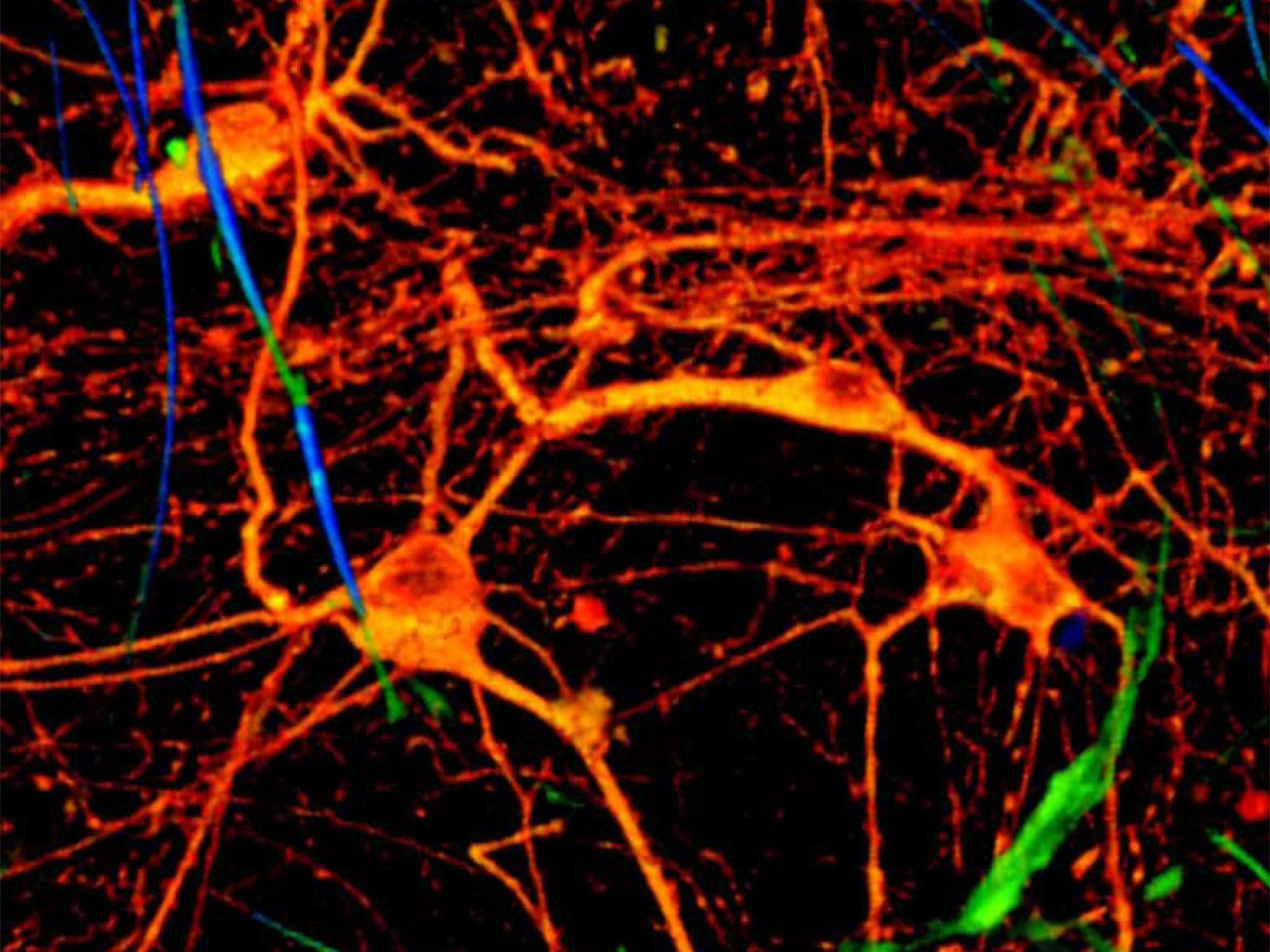 Image of rat brain cells grown in a 3-D nanowire scaffolding interact with electronics
