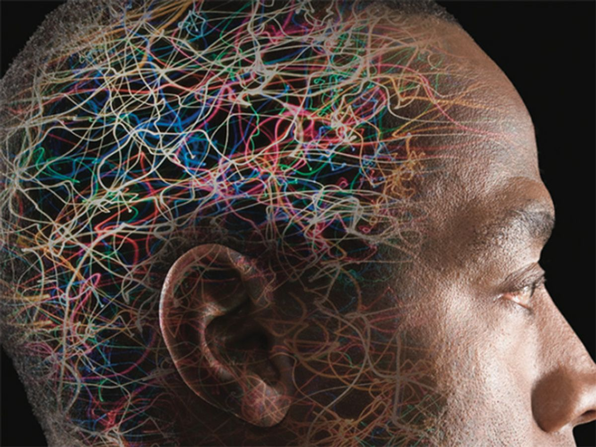 Image of man's brain.