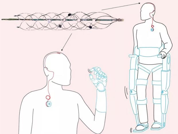 Stent Electrode Reads Brain Signals From Inside a Vein