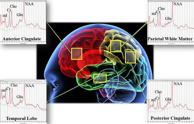 Brain Scans to Distinguish Between Brain Injury and PTSD
