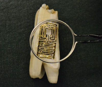 Graphene Nanosensor Tattooed to Teeth Detects Bacteria