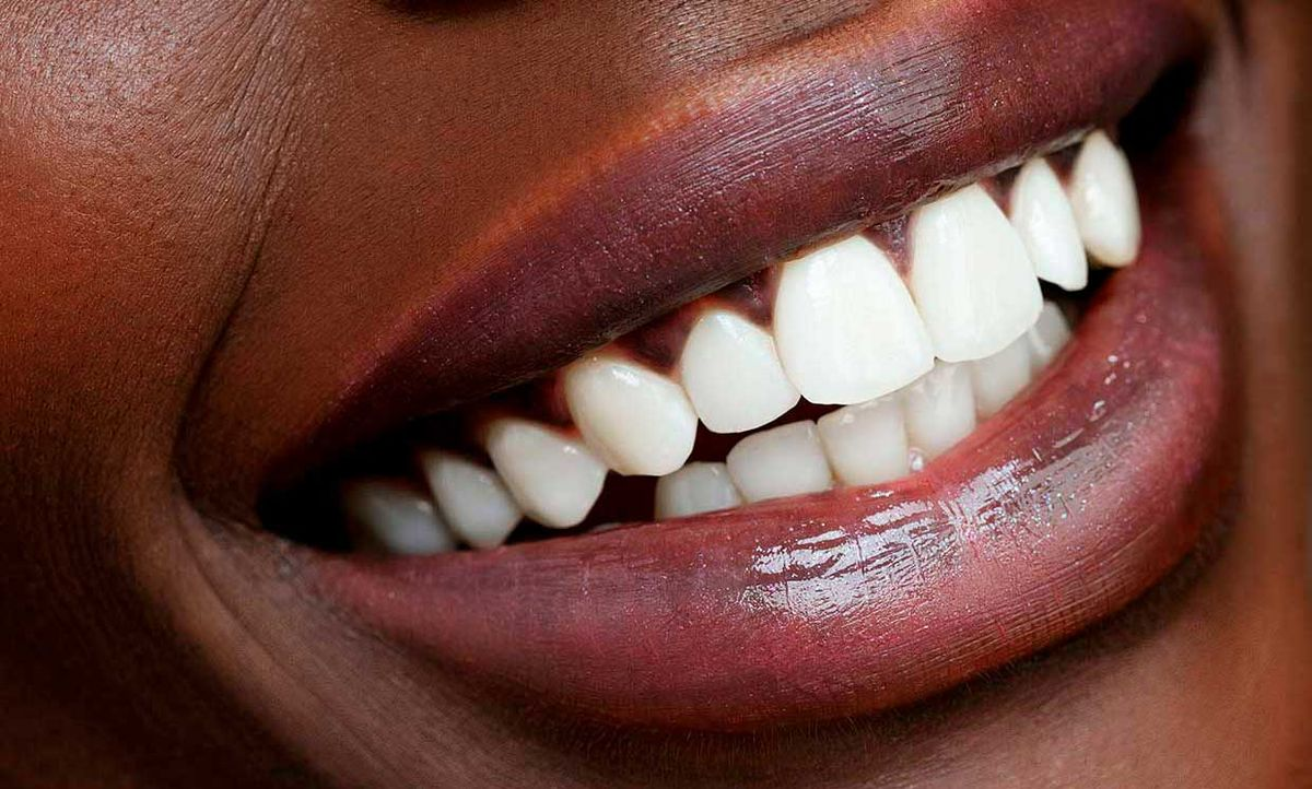 Close up of a woman's teeth