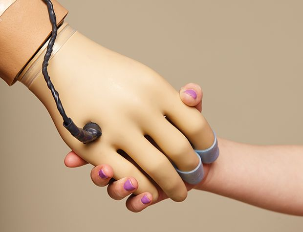 Photo of plugged-in prosthetic hand holding a child's hand.