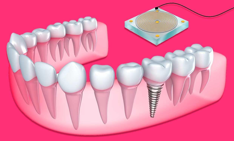 The newly designed implantable bone sensor conveys information to a reader.
