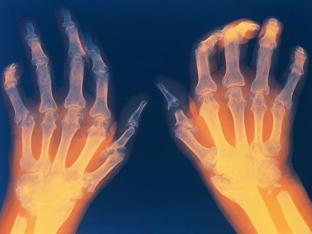 X-ray of the hands of a person suffering from rheumatoid arthritis